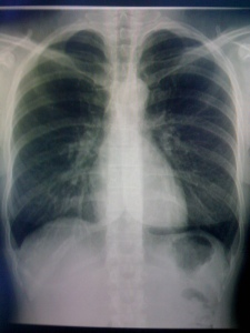 My chest x-ray. (Well a picture I took of my chest x-ray, honestly the image quality is much better than my phones!)
